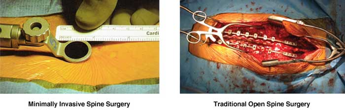 Images of Spine Surgery
